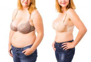 הקפאת שומן - לפני אחרי