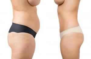 הקפאת שומן - לפני ואחרי
