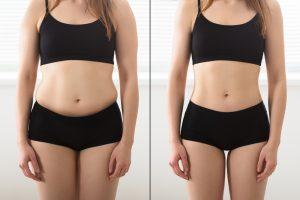 הקפאת שומן לפני ואחרי